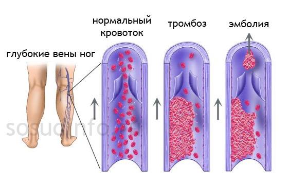 тромбоз и тромбоэмболия