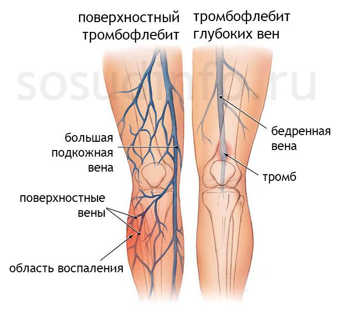 Тромбофлебит поверхностных и глубоких вен