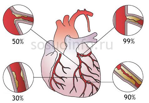 Различные стадии атеросклеротического поражения при сердечной ишемии