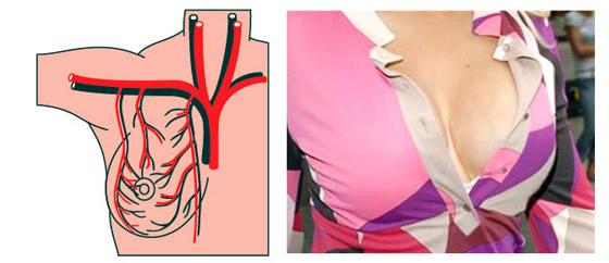 Строение груди подразумевает обилие в ней кровеносных сосудов, поэтому просвечивание вен без выпячивания - норма.