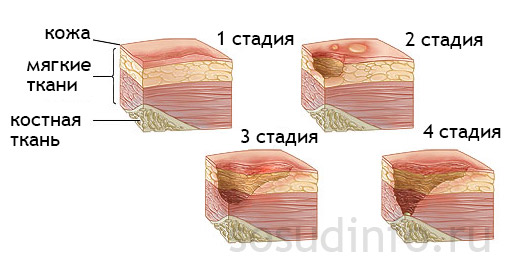 Если лечение трофической язвы