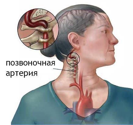 Сдавливание позвоночной артерии