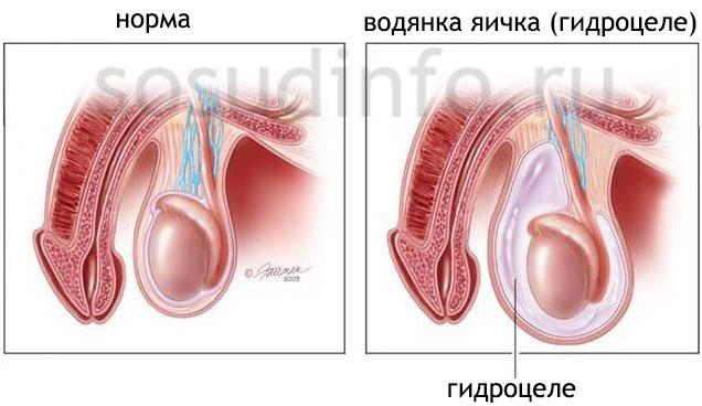 Гидроцеле - послеоперационне осложнение варикоцеле