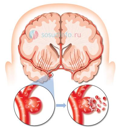 Разрыв мешотчатой аневризмы при геморрагическом инсульте
