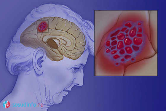 гемангиома головного мозга, опухоль сосудов
