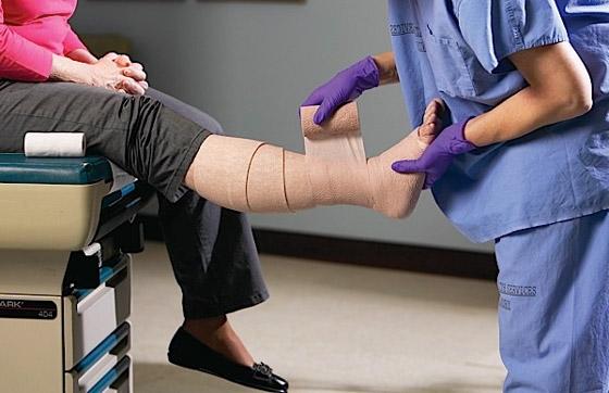 Компресионная терапия, особенно с использованием простого в применении трикотажа - один из важнейших моментов в компенсации ХВН