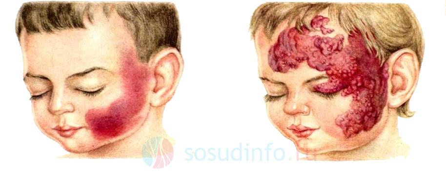 Гемангиома, ангиома: лечение, причины у детей, взрослых