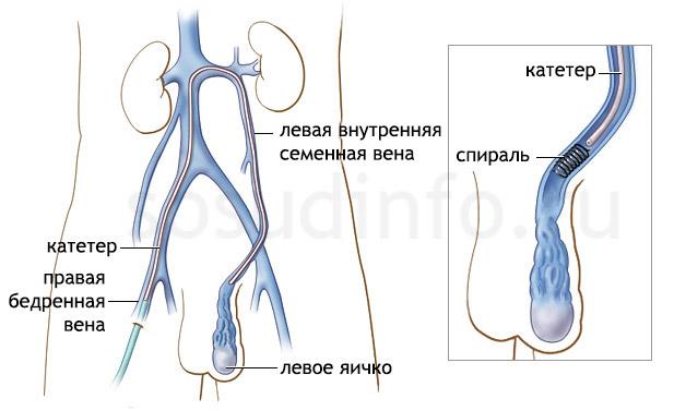 эмболизация при варикоцеле