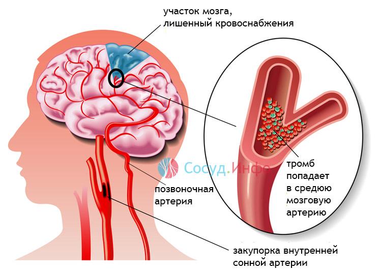 ишемический инсульт (инфаркт) головного мозга