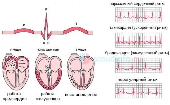 Аритмии - нарушения сердечного ритма на кардиограмме (ЭКГ)