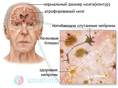 Патологический процесс в мозге больного деменцией альцгеймеровского типа