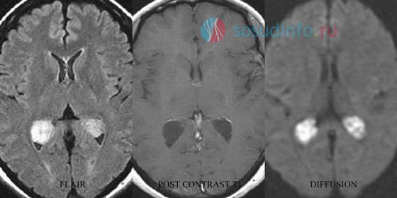 Кисты сосудистых сплетений на снимках МРТ