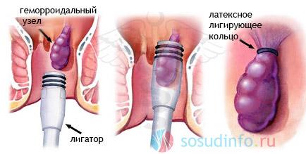 лигирование геморроидального узла латексными кольцами