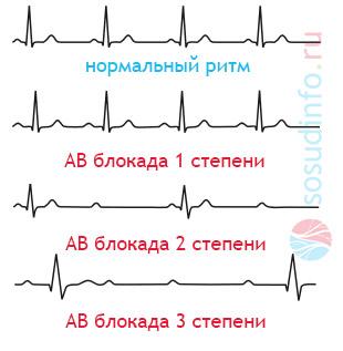 Антриовентрикулярная блокада сердца