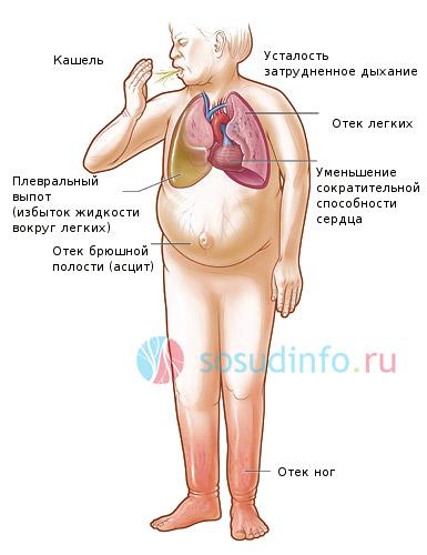 общие симптомы сердечной недостаточности