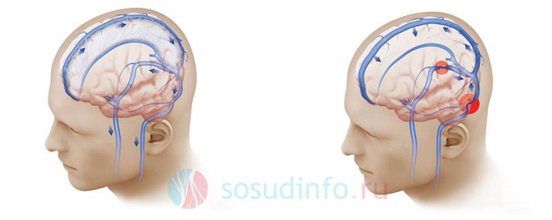 нормальное венозное кровообращение головы (слева) и нарушенное вследствие сужения сосуда (справа)