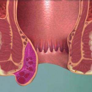Геморроидальный узел лечение