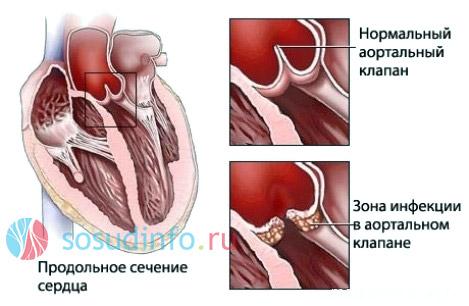 Клапанные пороки и стенозы - следствие ревматизма