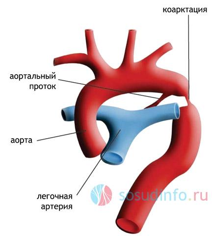 сильная степень коарктации (сужения) аорты, чреватая осложнениями