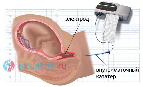 ЭКГ для диагностики состояния плода, подверженного гипоксии
