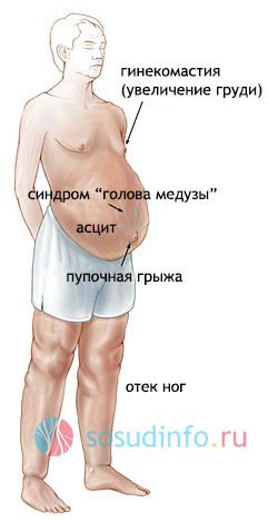 симптомы существенной портальной гипертензии