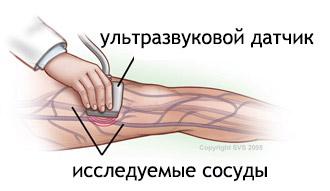 Детралекс отзывы при варикозе ног врачей