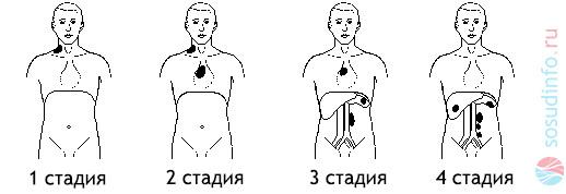 стадии лимфомы и области поражения