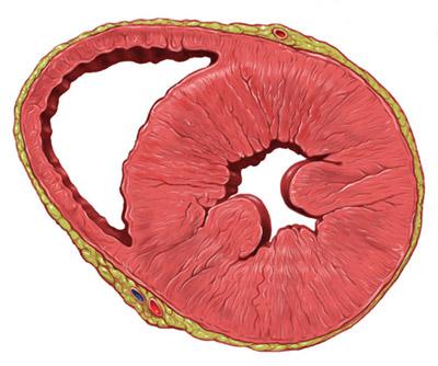 результат гипертрофии - уменьшение полостей сердца