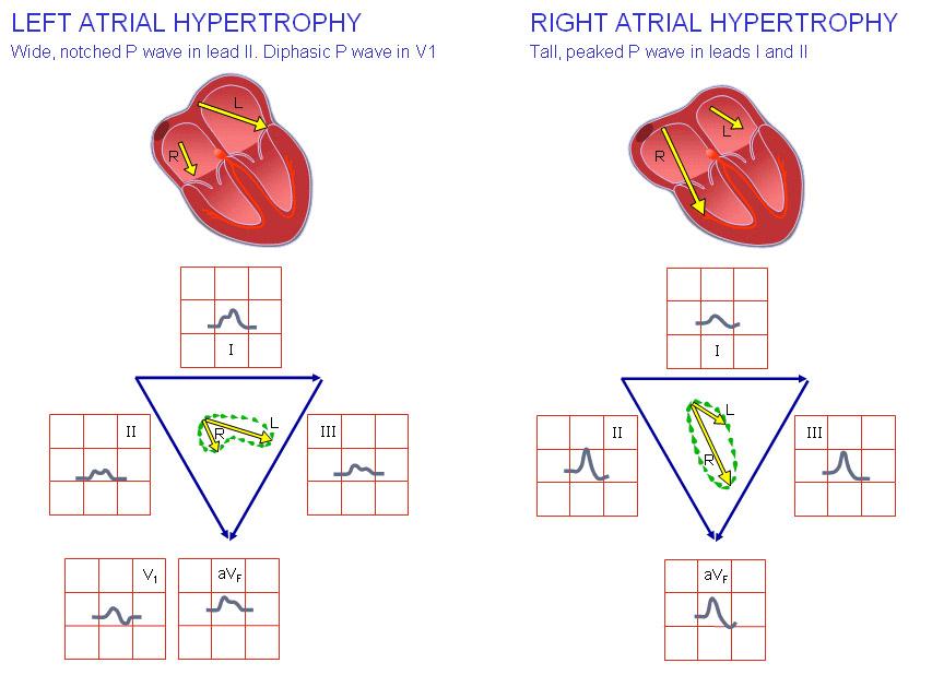 Гипетрофия левого и правого предсердий на ЭКГ
