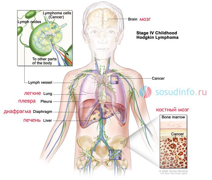 4 стадия лимфомы