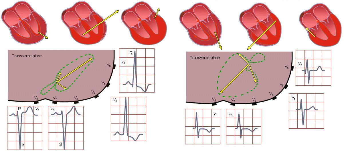 гипертрофия левого (слева) и правого (справа) желудочков на ЭКГ