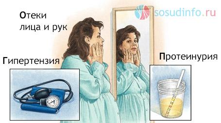 Симптомы гестоза