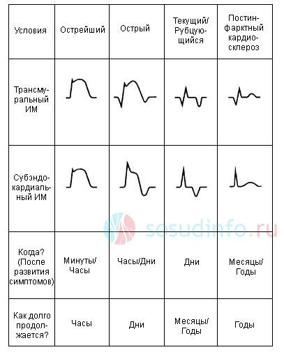 частные формы инфаркта на ЭКГ