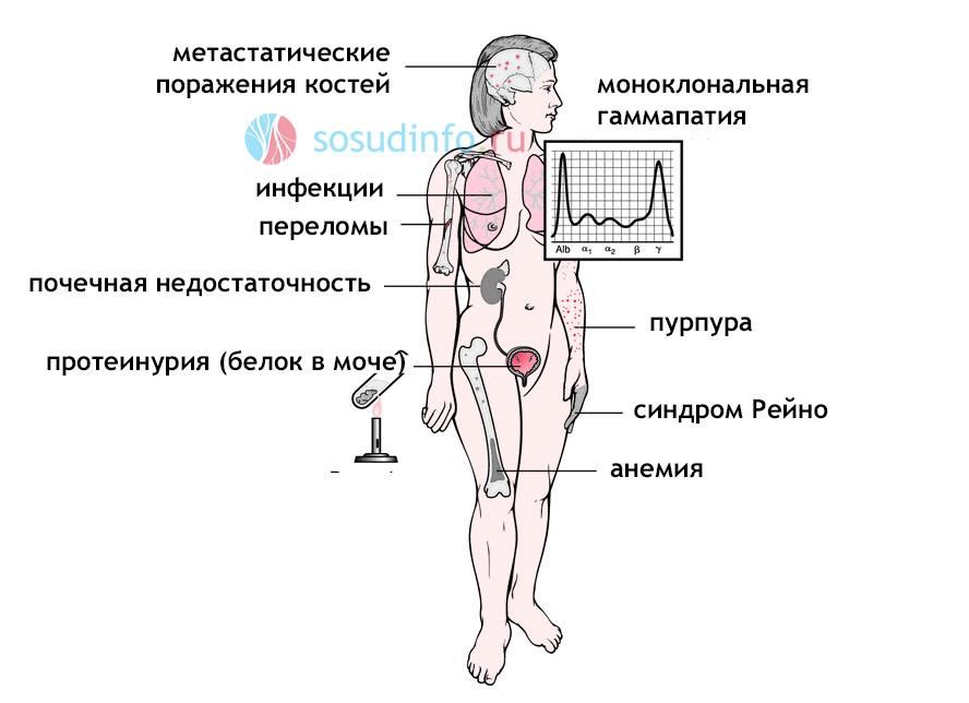 симптомы миеломы