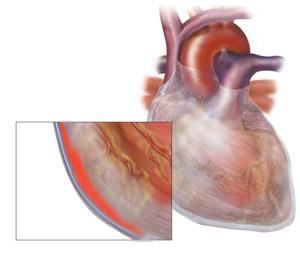Перикардит - одна из форм воздействия волчанки на сердце