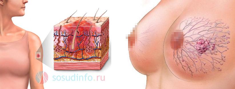 Строение обычного синяка (слева) и образования на груди, переходящего в злокачественное (справа)