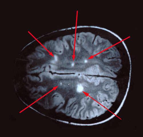 очаги РС на диагностическом снимке