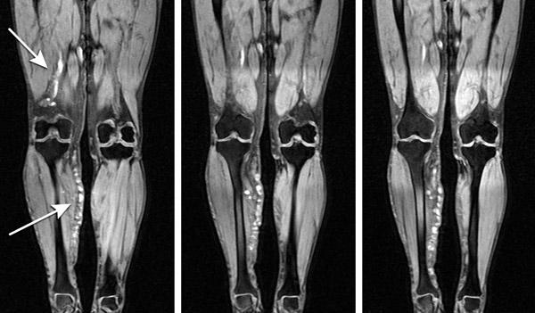 тромбоз сосудов ног на МРТ-снимке