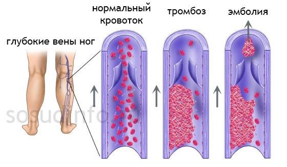 тромбоз и эмболия (отрыв тромба) на примере вен ног