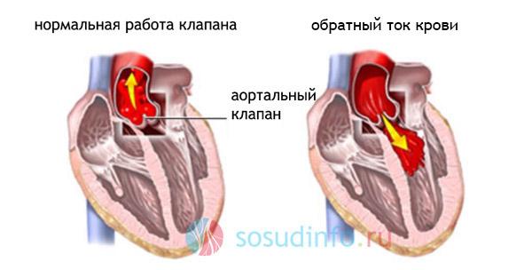 Митральная и трикуспидальная регургитация