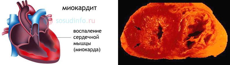 Миокардит. На фото справа - сердце в поперечном разрезе. Стрелками обозначены диффузные воспалительные процессы в сердечной ткани при миокардите