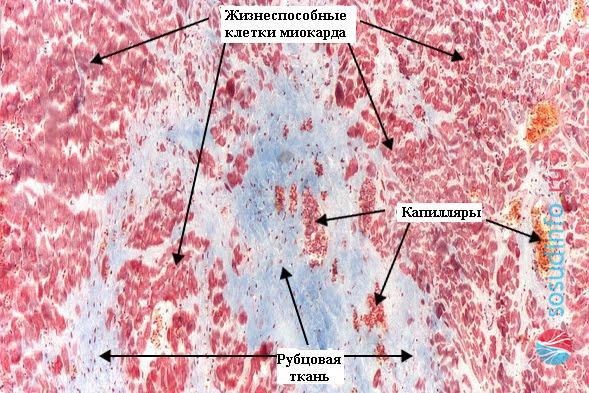 На рисунке изображены очаги рубцовой ткани под микроскопом