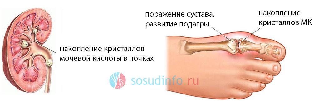 варианты поражения мочевой кислотой почек и суставов