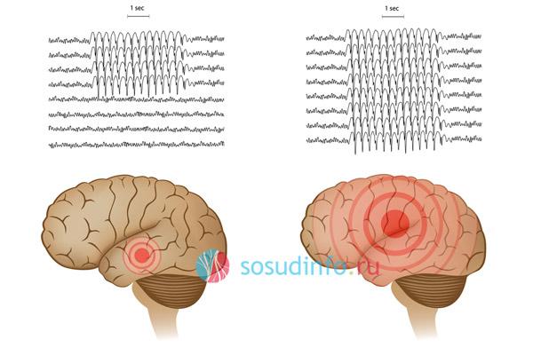 очаговая и генерализированная эпилепсия на ЭЭГ
