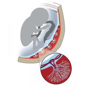 анемия при беременности как влияет на плод