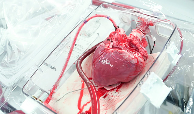 Донорское сердце, готовое к трансплантации