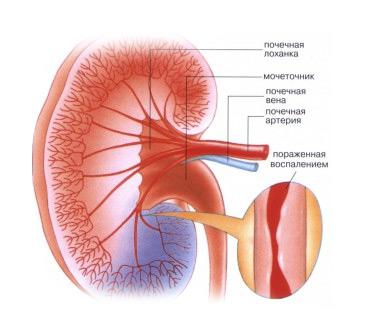 поражение узелковым периартериитом почек