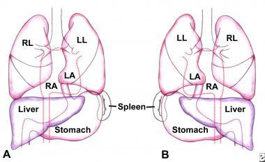 декстрокардия с транспозицией органов