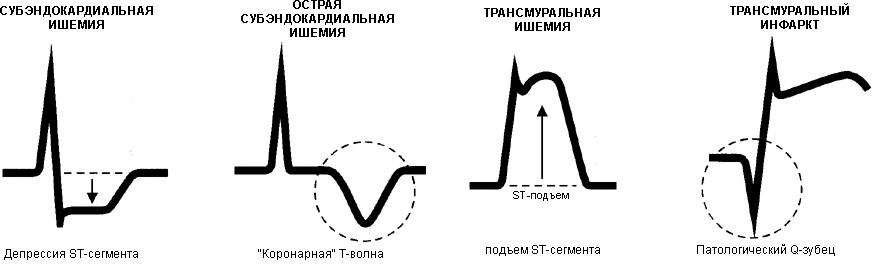 различные формы и степени ишемических изменений на ЭКГ