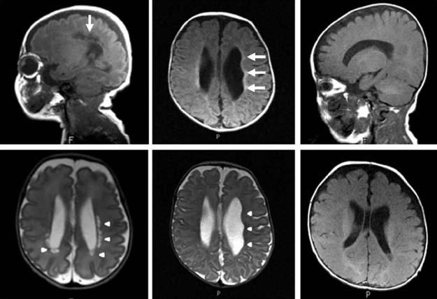 лейкомаляции на снимкам МРТ